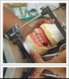 Wax try-in Dentures