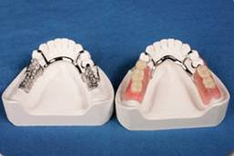 Partial Denture at North Hill Denture Clinic