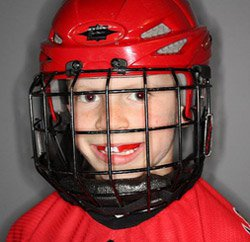 Mouth Guards for athletes in Calgary