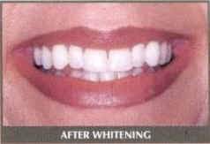 After Teeth Whitening at North Hill Denture Clinic